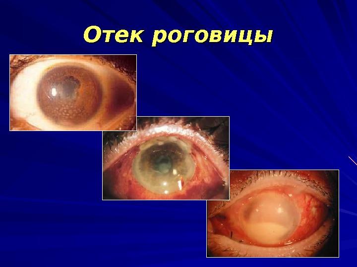 Роговица глаза - что это, строение, функции, фото