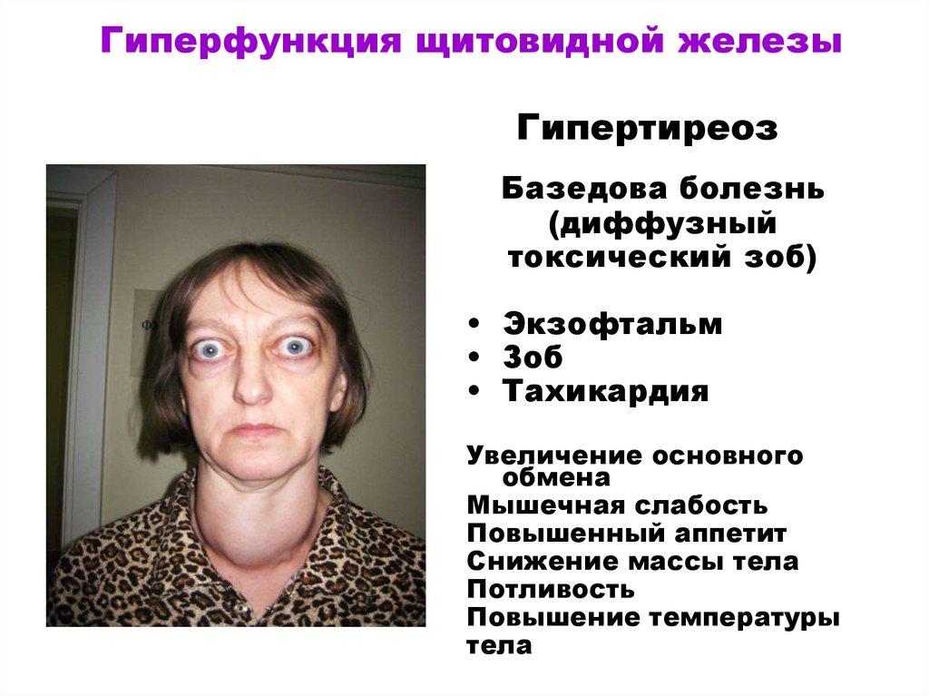 Гипертиреоз — симптомы у женщин, лечение и препараты для щитовидной железы