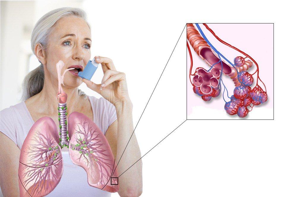 Гипервентиляция легких, ее симптомы. когда назначают гипервентиляцию легких