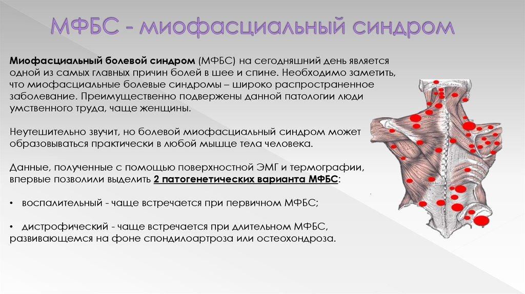 Миофасциальный синдром шейного отдела - что это за патология?