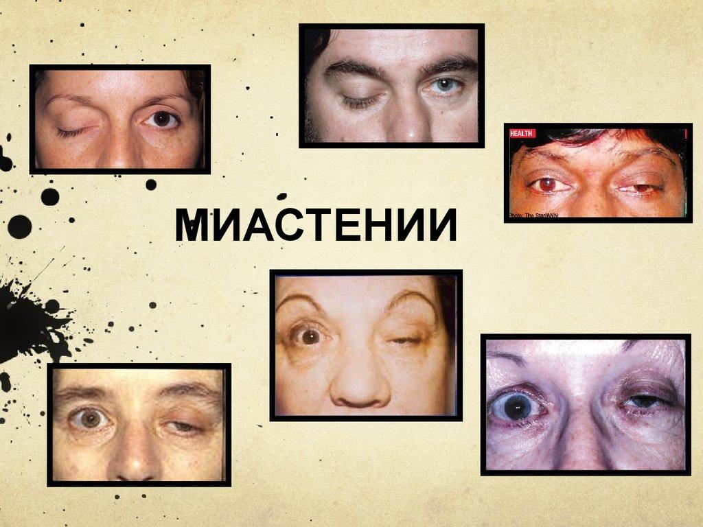 Миастенический синдром: развитие, признаки, диагностика, лечение, прогноз