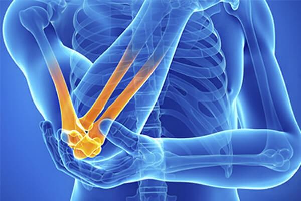 Полиартрит пальцев рук: симптомы и лечение