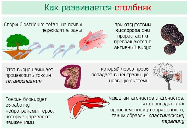 Столбняк: причины, первые признаки, симптомы, лечение, профилактика