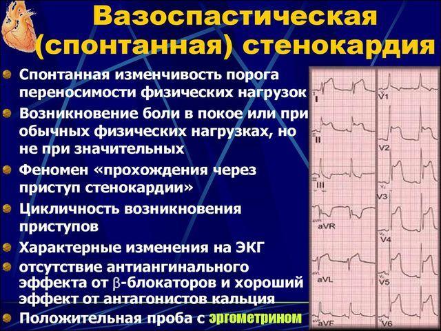 Вазоспастическая стенокардия лечение — сердце