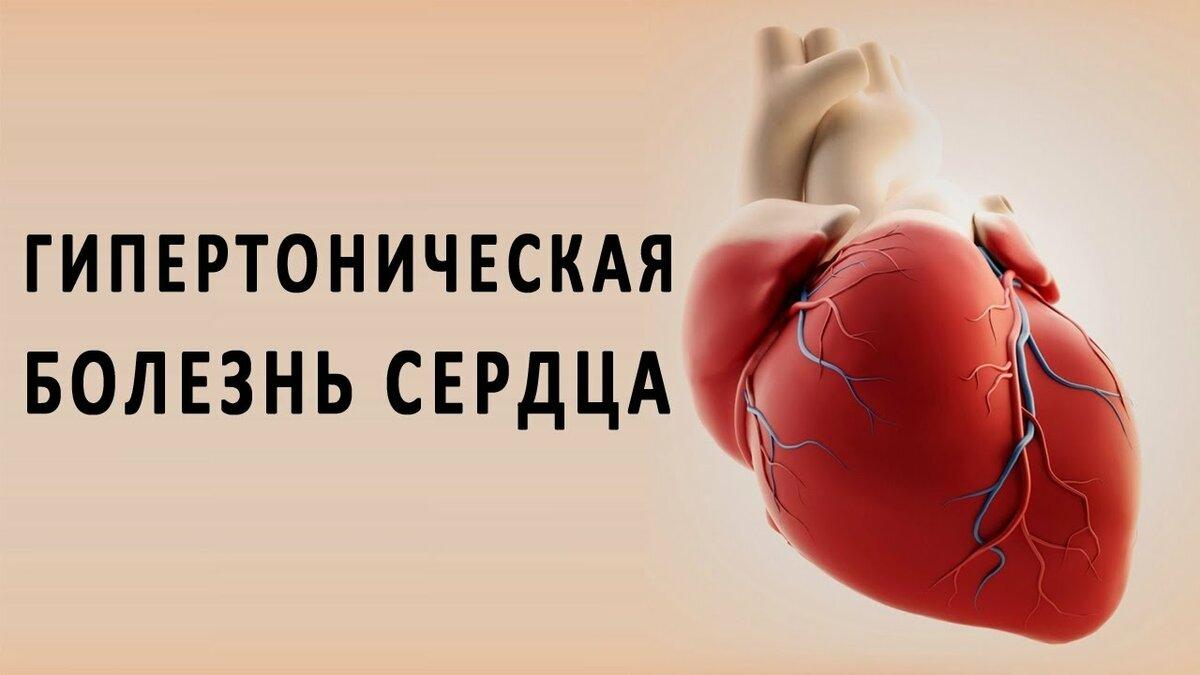 Артериальная гипертензия - что это такое