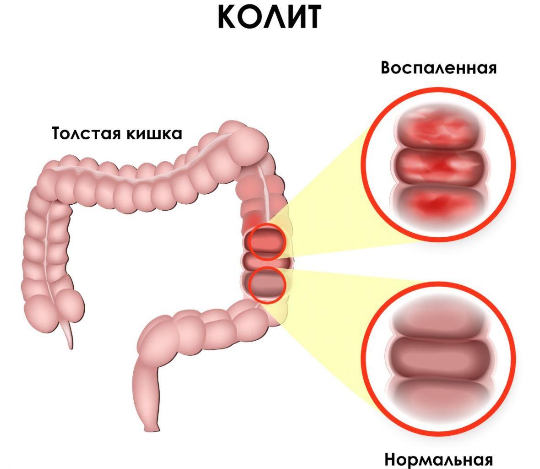 Колит - признаки, симптомы, причины, диагностика и способы лечения заболевания