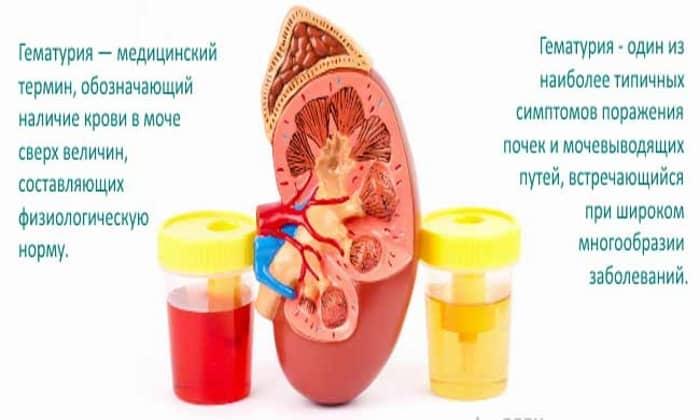 Гематурия: откуда берётся и что означает кровь в моче