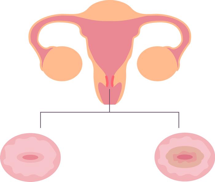 Эрозия шейки матки: симптомы и лечение