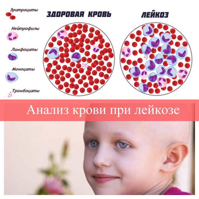 Олег тиньков признался, что у него рак крови. что такое лейкемия? какой прогноз выживания?