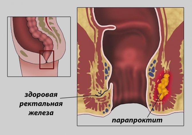 Диагностика парапроктита, причины, симптомы, лечение