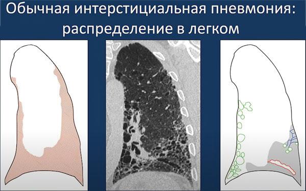 Понятие интерстициальная пневмония, отличительные черты, симптоматика поражения легких и лечение