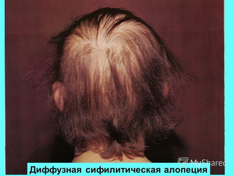 Что такое болезнь алопеция (облысение): виды, симптомы, лечение