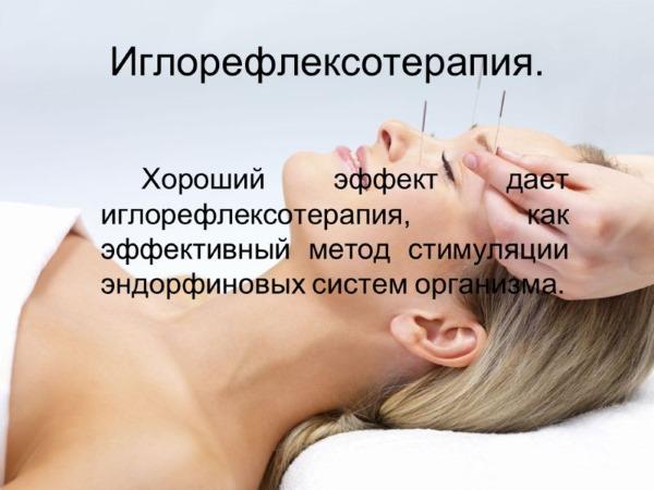 Иглотерапия: что лечит, цены в москве, где можно пройти лечение иглоукалыванием?