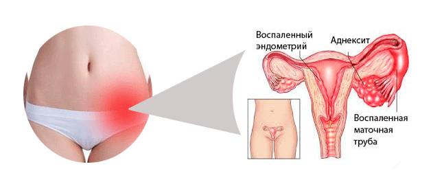 Оофорит: лечение, признаки оофорита