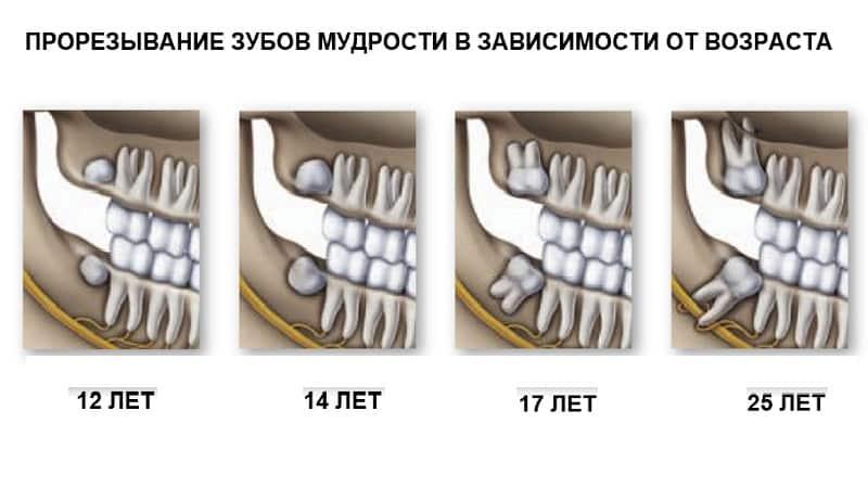 Как удаляют зубы мудрости и надо ли это делать: советы и рекомендации опытных стоматологов