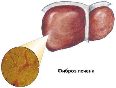 Фиброз печени: симптомы, степени, формы, причины, лечение и прогноз