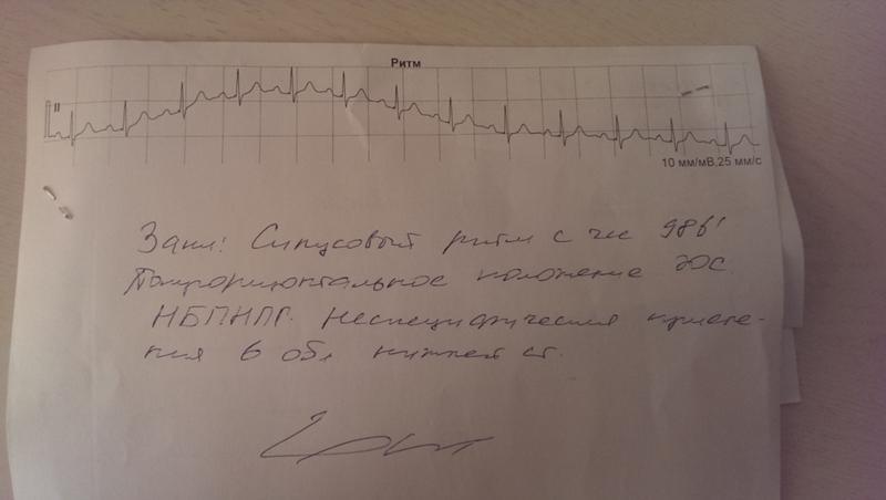 Первые признаки синусовой аритмия сердца, описание симптомов, лечение