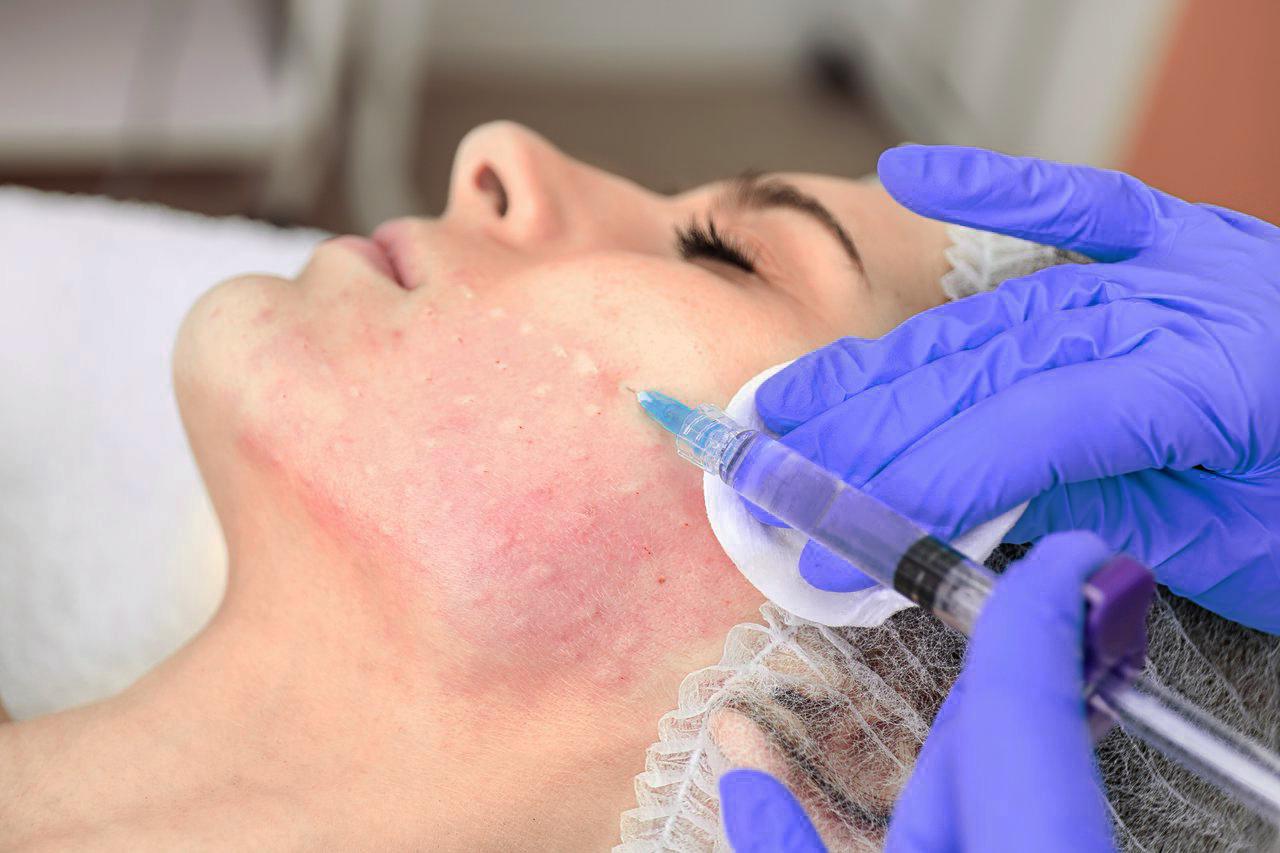 Процедура микронидлинга (медицинский, фракционный, аппаратный): средство дермапен, аппарат нанопор для лица, головы, побочные эффекты