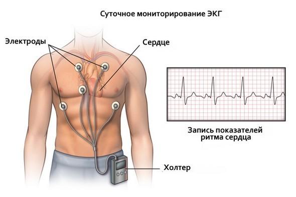 Холтеровский мониторинг сердца: для чего применяют экг по холтеру?