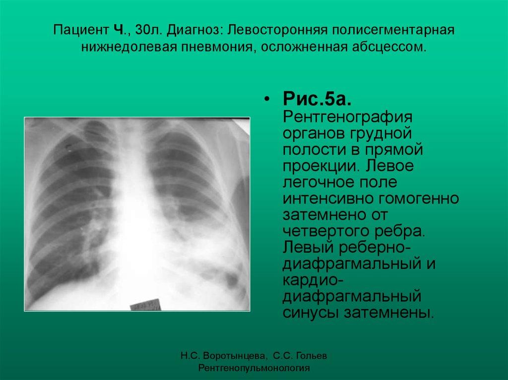 Что такое полисегментарная пневмония, её симптомы и лечение pulmono.ru что такое полисегментарная пневмония, её симптомы и лечение