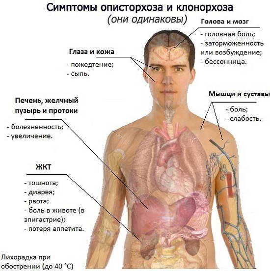 Описторхоз - симптомы, причины, диагностика и лечение заболевания