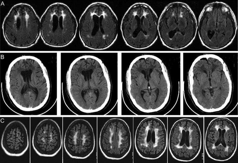 Киста головного мозга: симптомы, последствия, лечение, опасные размеры, причины