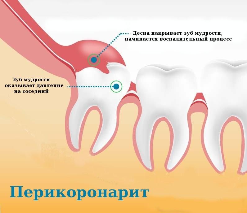 Фото зубов мудрости, обучающее видео о зубах мудрости, когда их надо удалять и всегда ли это необходимо
