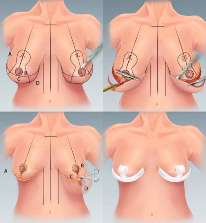 ✦ маммопластика ✦ страшные последствия после увеличения груди