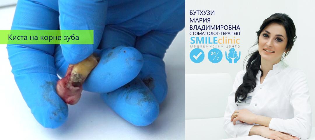 Что такое киста зуба и как ее вылечить