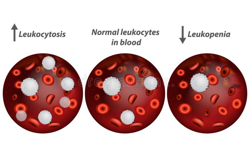 Лейкоциты в крови повышены - что это значит, причины