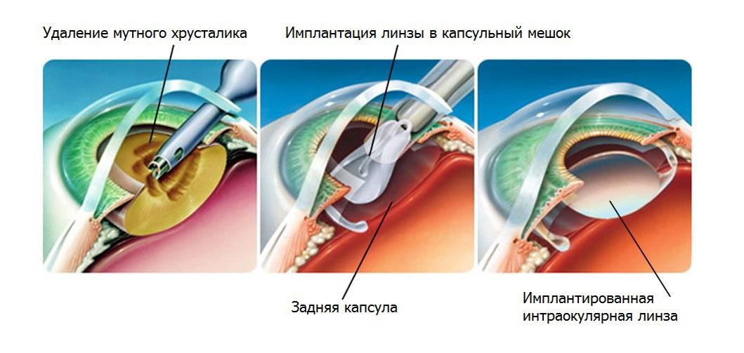 Хрусталик - анатомическое строение, функции, патологии
