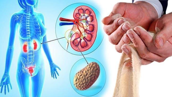 Лечение микронефролитиаза почек