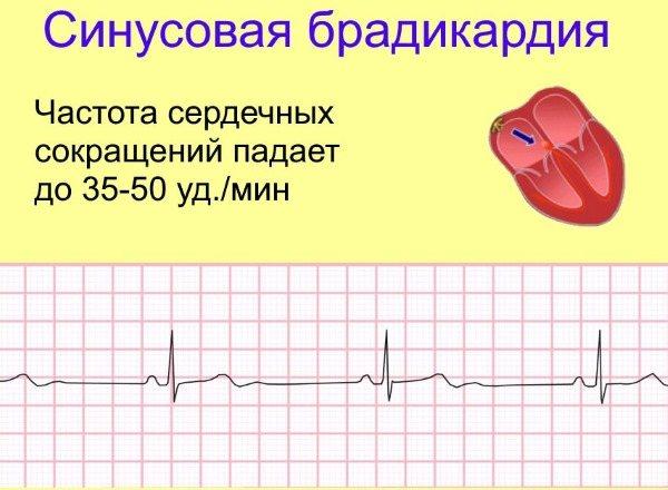 Народные средства при брадикардии сердца