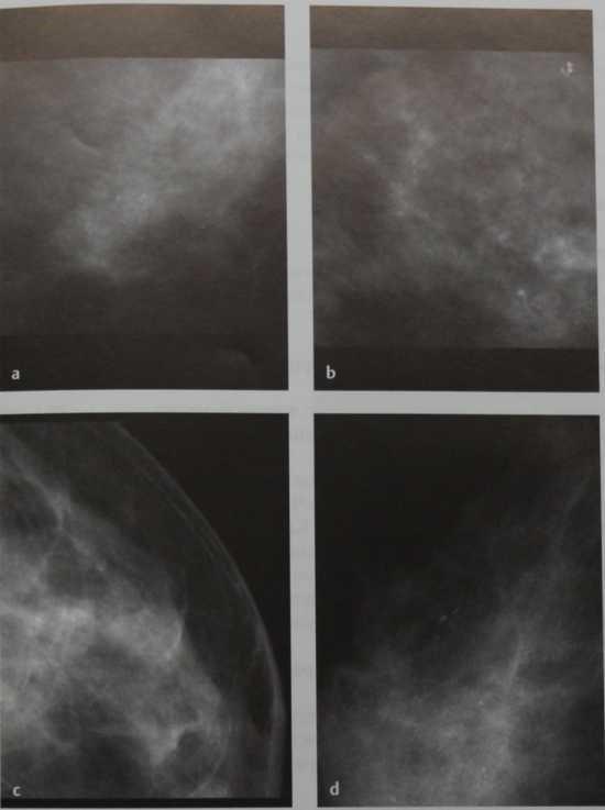 Виды кальцинатов в молочной железе, методы диагностики и лечения