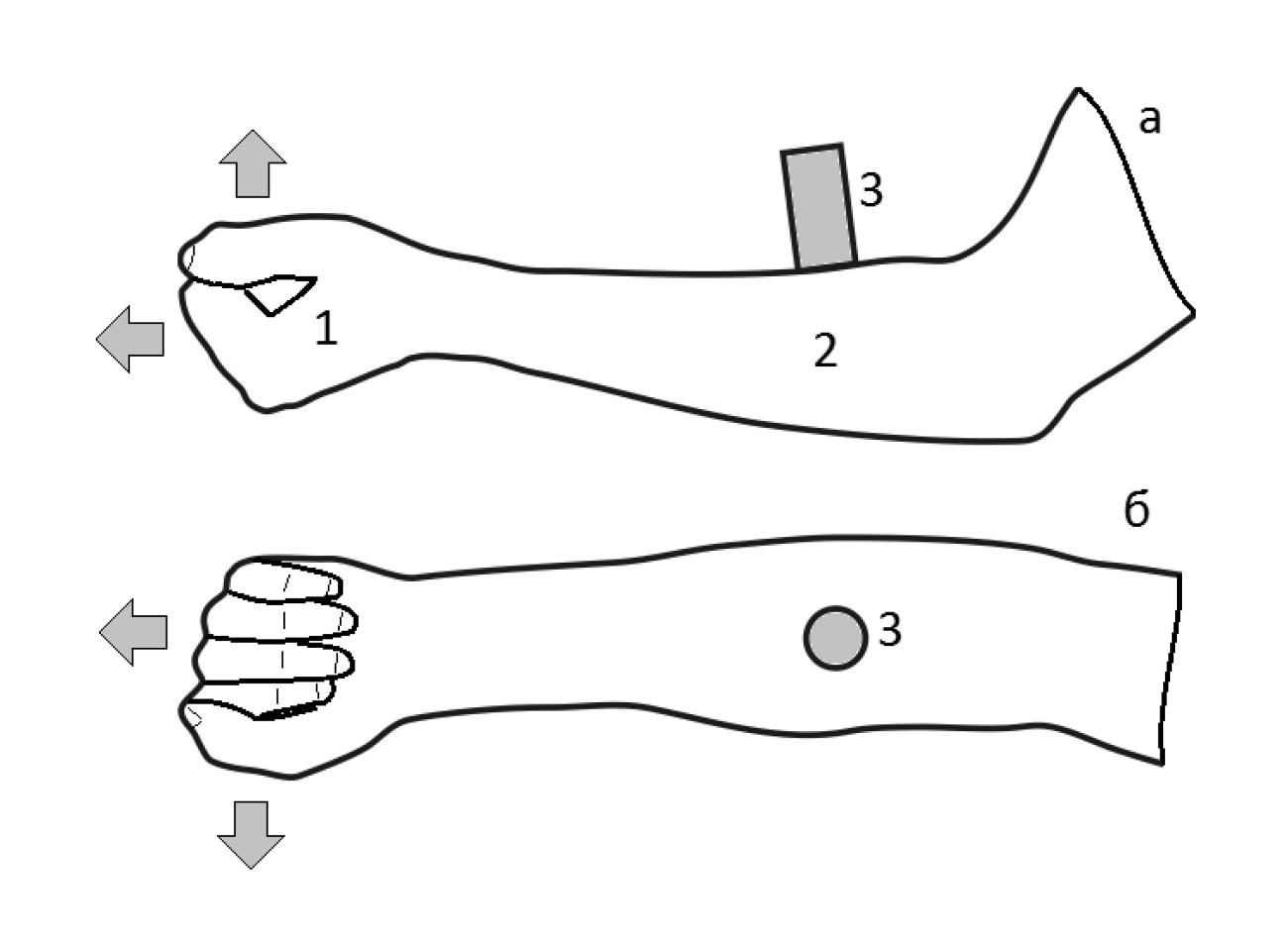 Анатомия костей предплечья