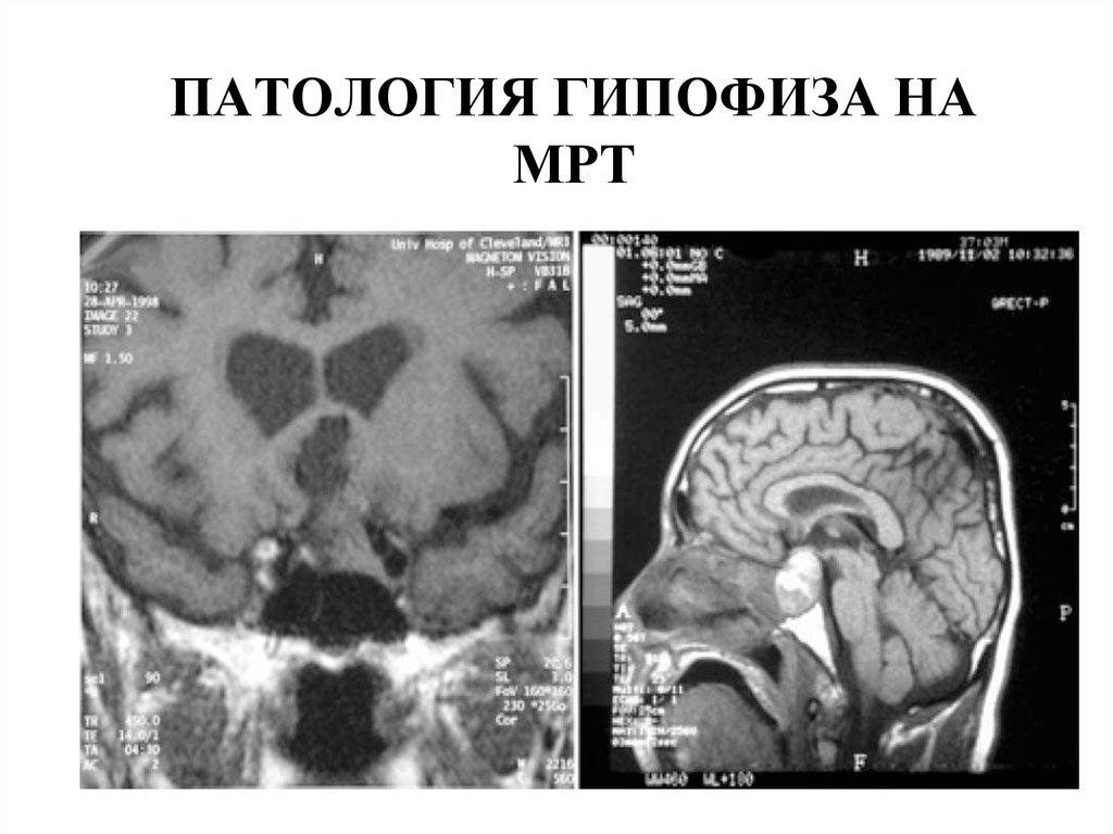 Аденома гипофиза - как распознать и лечить