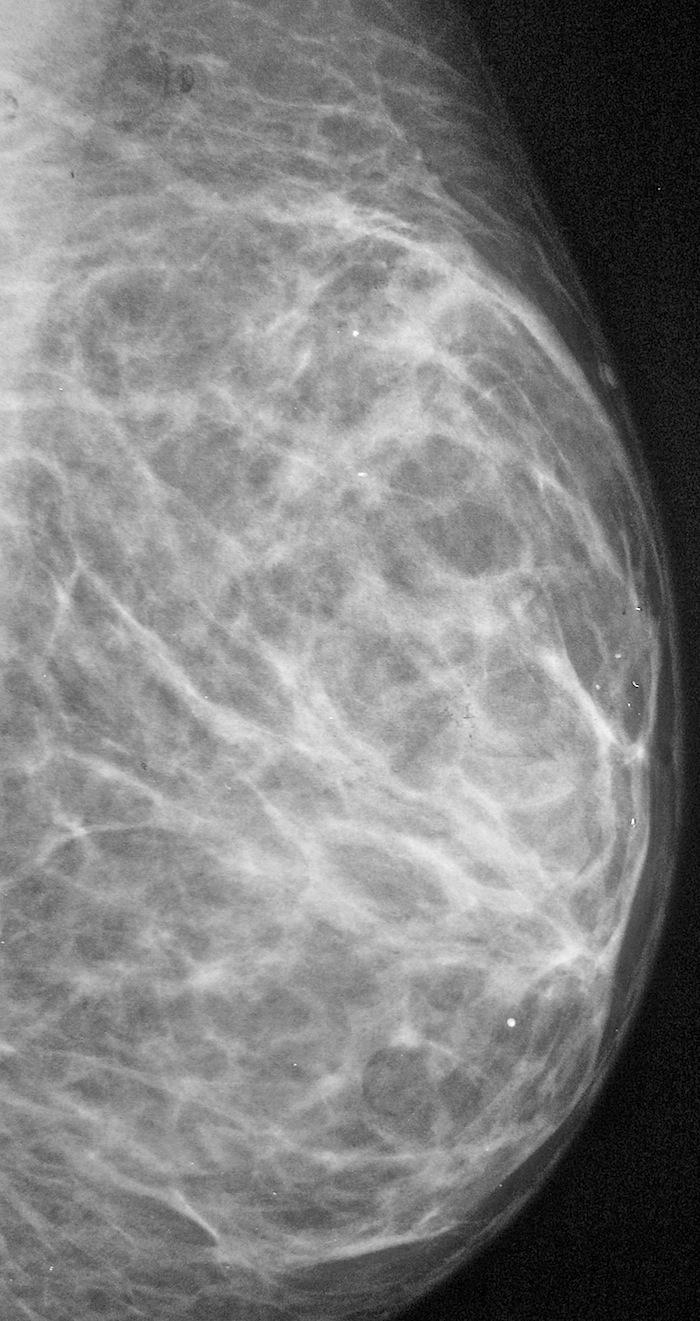 Маммография молочных желез: для чего и как проводят, виды, результат