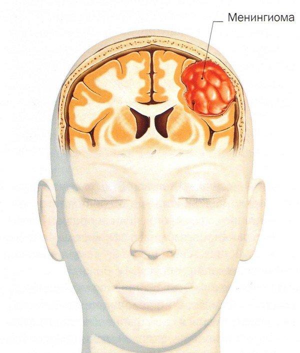 Менингиома головного мозга: операция и прогноз для жизни