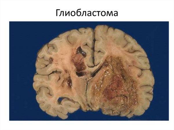 Глиобластома головного мозга, симптомы, лечение