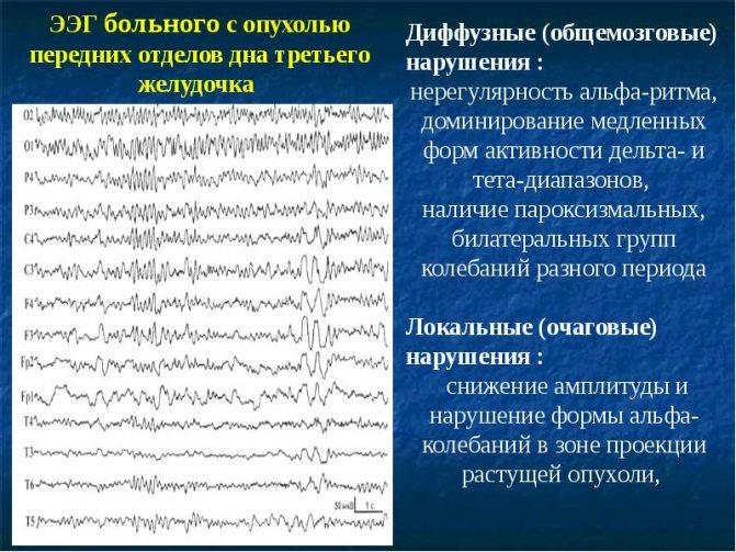 Электроэнцефалография (ээг) головного мозга для взрослых и детей