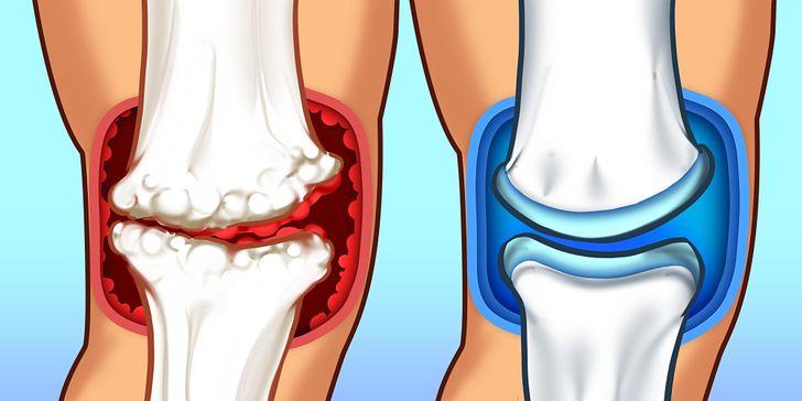 Что такое суставы и где они находятся | лечение суставов