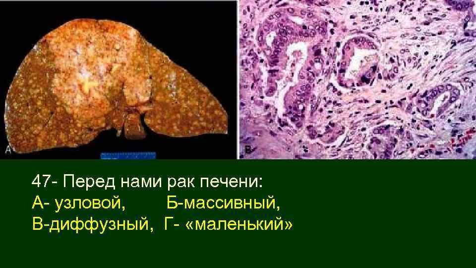 Диффузные изменения паренхимы печени: что это такое, признаки, лечение