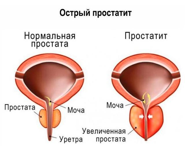 Простатит у мужчин: его признаки и лечение, симптомы, профилактика
