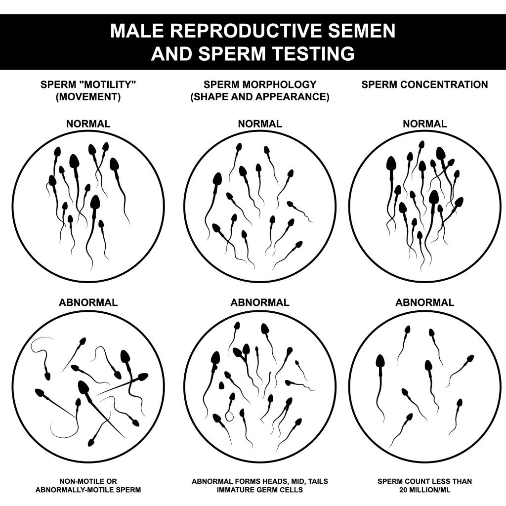 Тератозооспермия у мужчин - что это такое? лечение и беременность