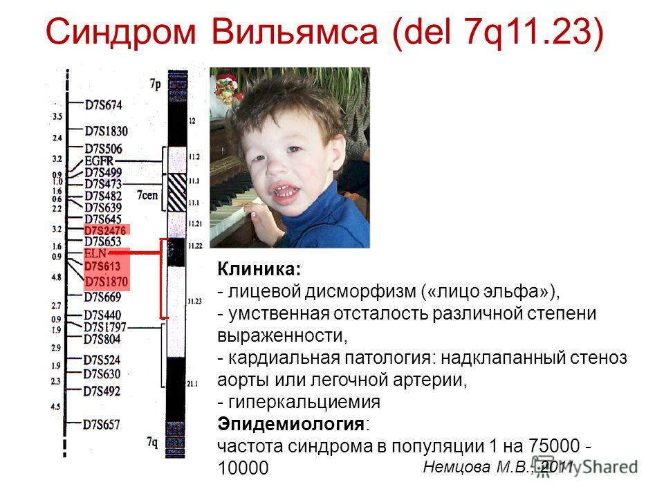 Синдром ангельмана: болезнь петрушки, фото детей, симптомы и видео, заболевание счастливой куклы, что это за болезнь