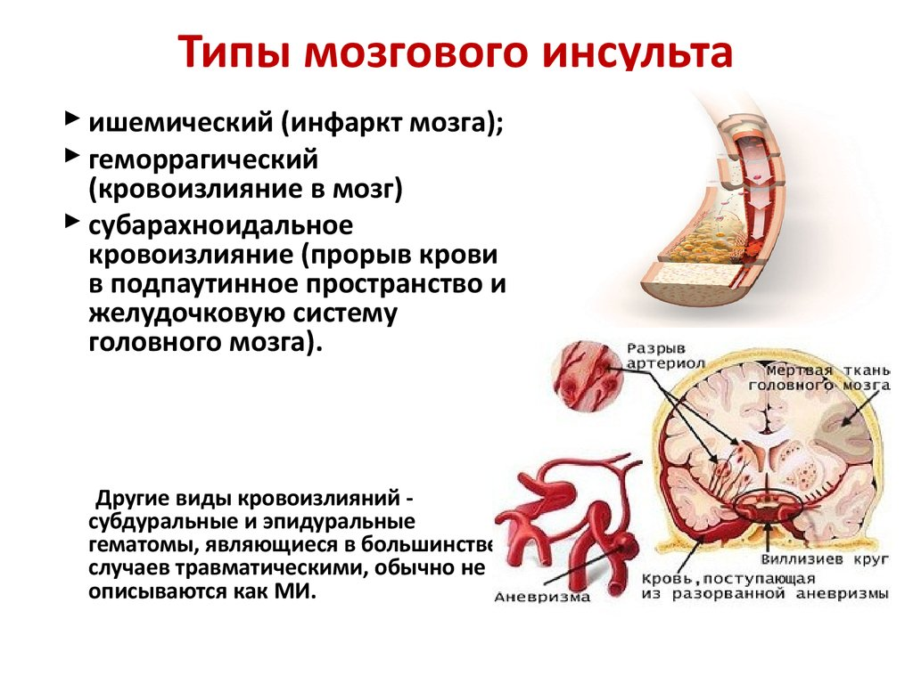 Разновидности инсультов головного мозга: различия в причинах и лечении