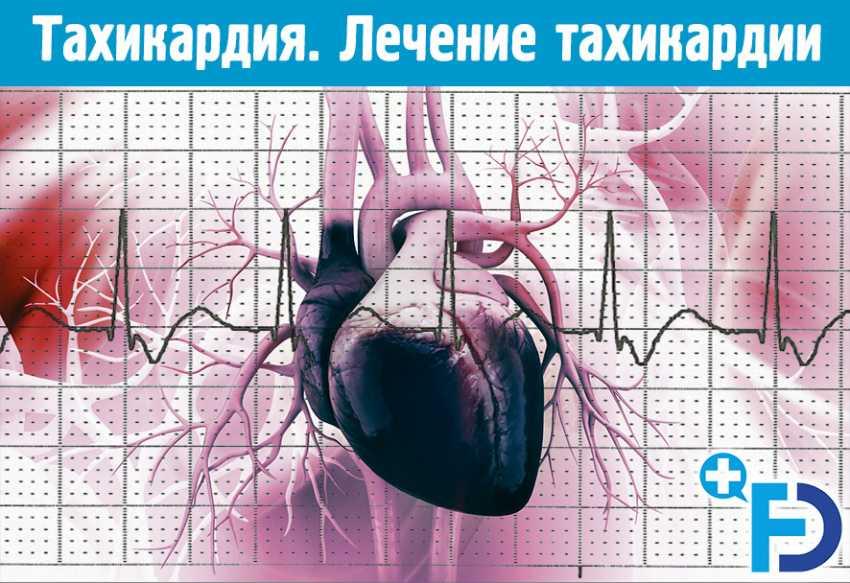 Тахикардия: причины, симптомы, диагностика, лечение и профилактика