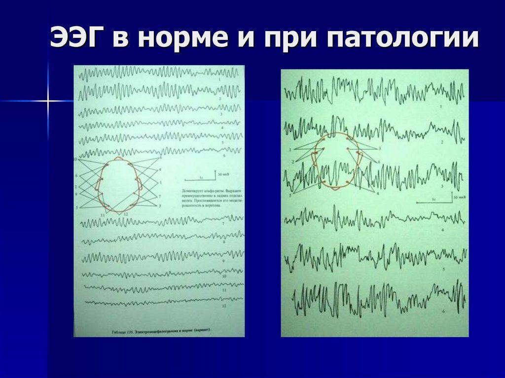 Что показывает электроэнцефалограмма головного мозга? ход процедуры, описание, назначение и отзывы