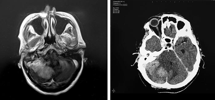 Компьютерная томография (кт) головного мозга