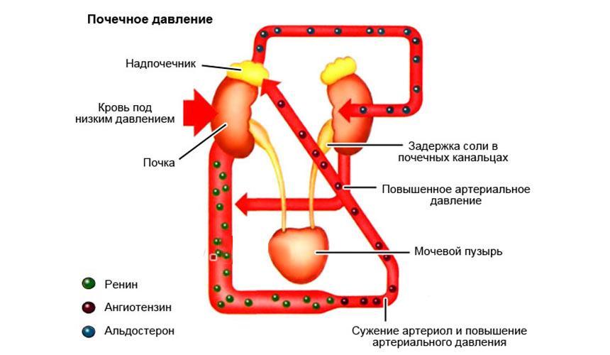 Реноваскулярная гипертензия: что это такое, симптомы и лечение артериальной гипертонии